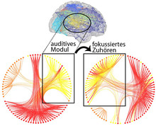 Während des fokussierten Zuhörens werden auch Hirnregionen eingebunden, die mit der gezielten Ausrichtung von Aufmerksamkeit assoziiert sind (Abb.: Alavash et al.)