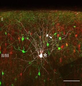 Histologischer Schnitt durch die Großhirnrinde.Triple-transgenes Mausmodell mit Martinotti-Zellen in ... Abbildung: staiger/witte